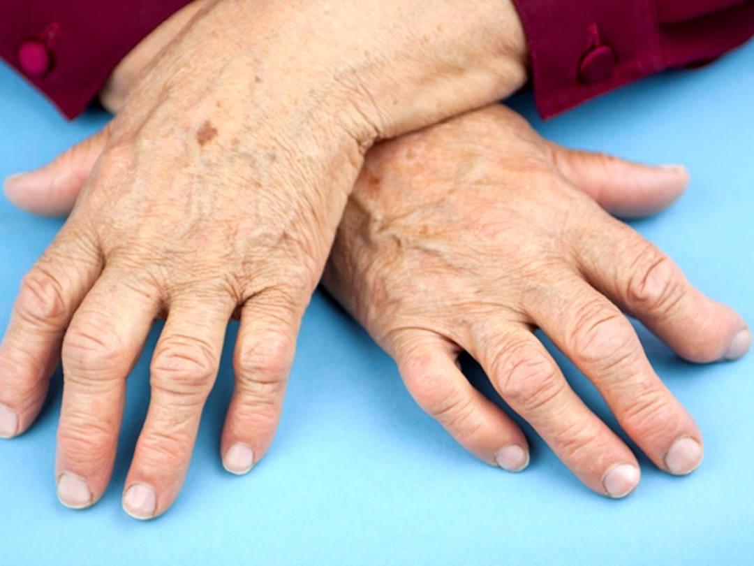 Диета при артрите и артрозе пальцев рук
